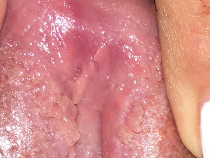 Conditions of the mucous membranes - Difference between vestibular papillomatosis and warts