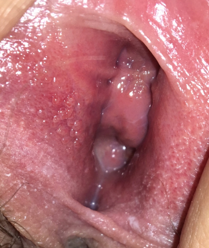 vestibular papillomatosis on tongue)