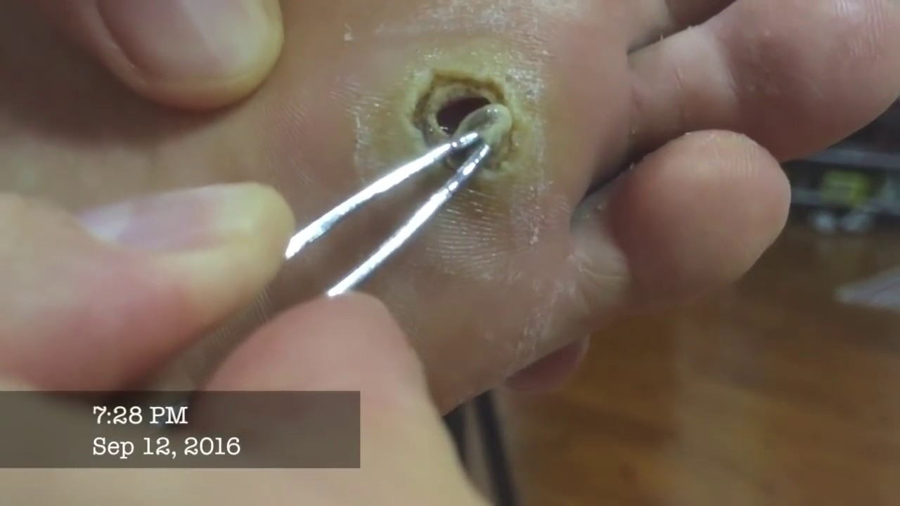 wart foot hole