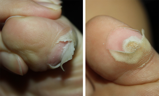 wart on foot coming off)