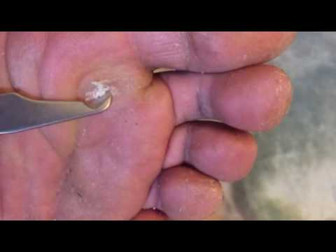 Plantar wart on foot black dots