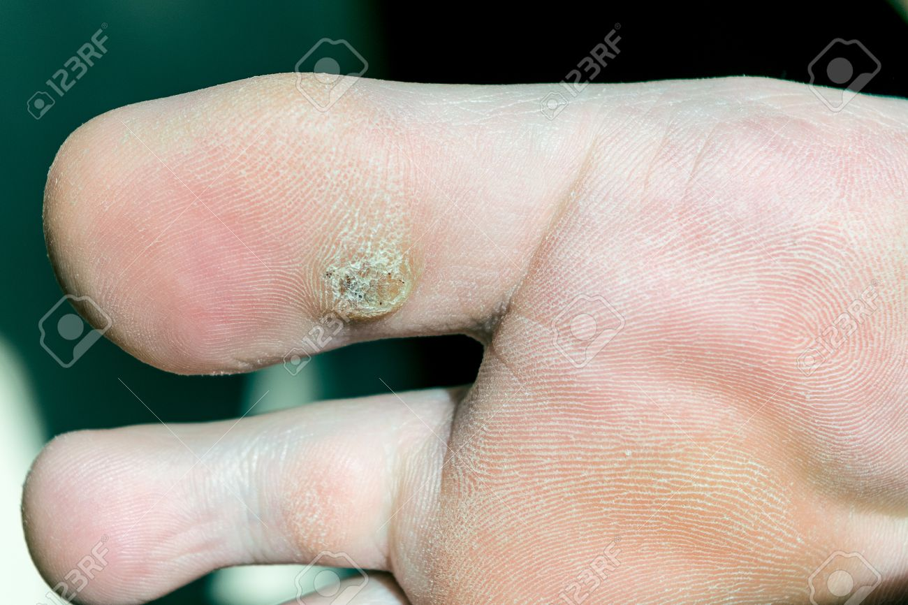 wart on foot with black dots