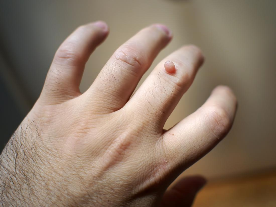 wart treatment causes blisters)