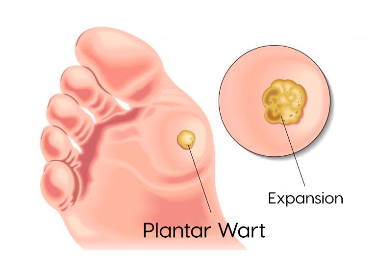 wart treatment on feet