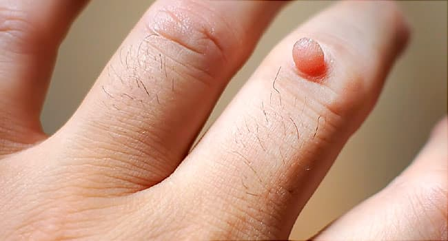 warts on both hands