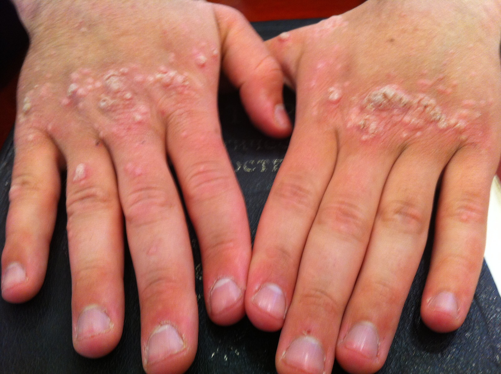 warts on hands eczema)