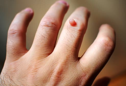 warts on my hands and fingers papillomavirus impfung