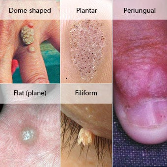Warts on hands and body