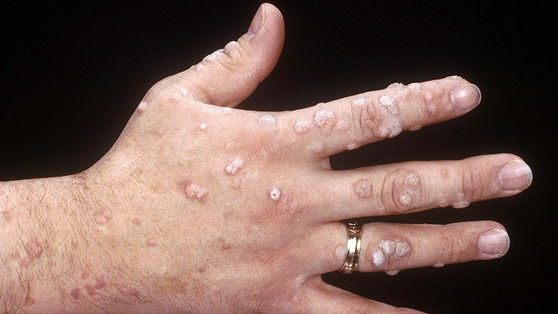 warts treatment medscape