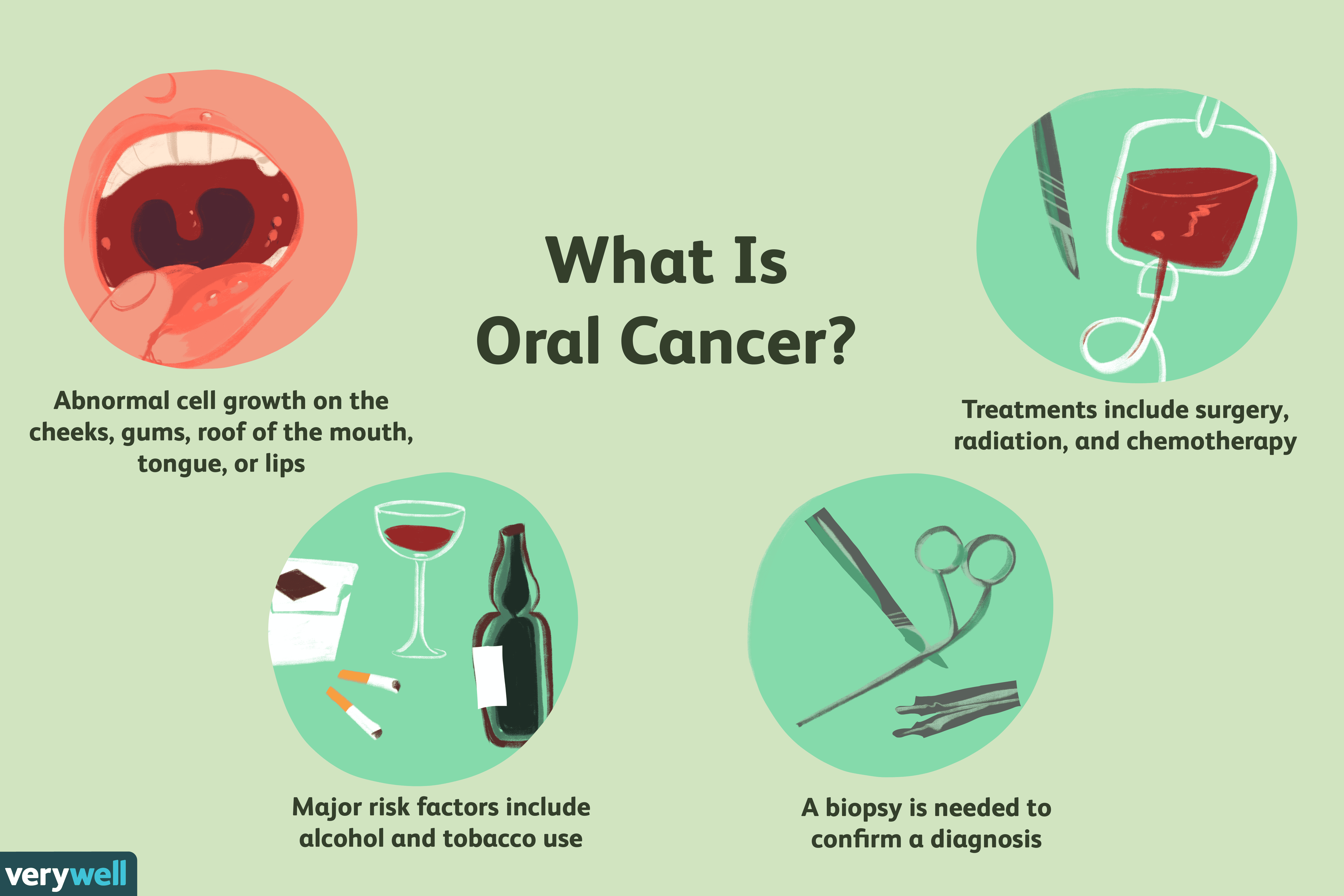 hpv causes oropharyngeal cancer)