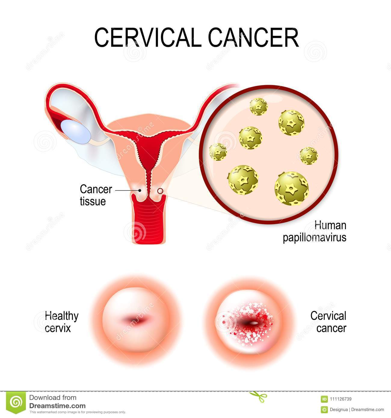 Human papillomavirus (hpv) is a significant cause of which disease