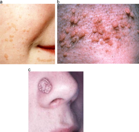 hpv and skin problems