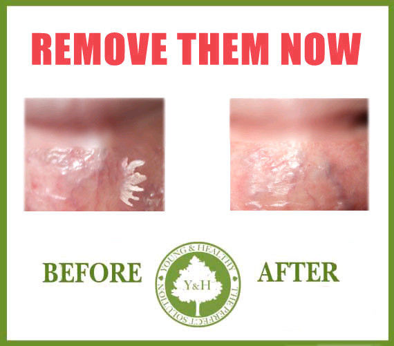 Plantar wart home remedy removal