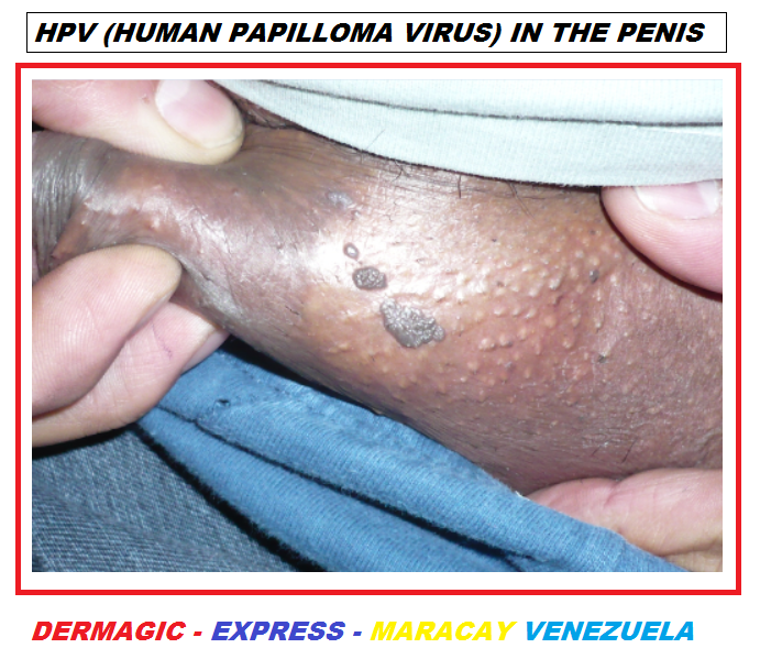 Papilloma skin pictures