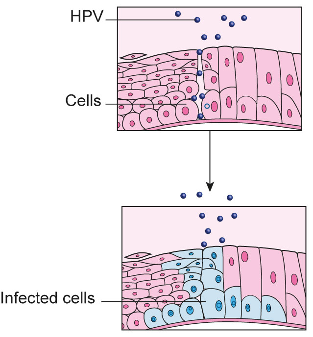 human papilloma cell changes)