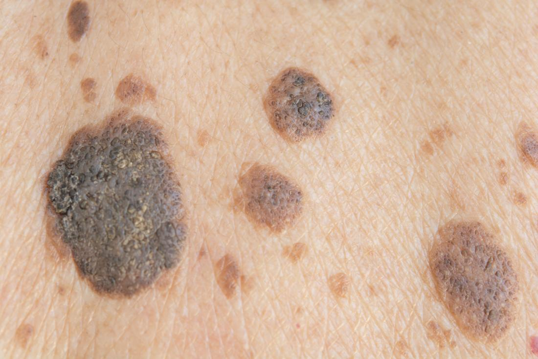 Wart on face or skin cancer. Clavusin indications