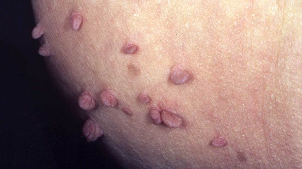 hpv itchy skin