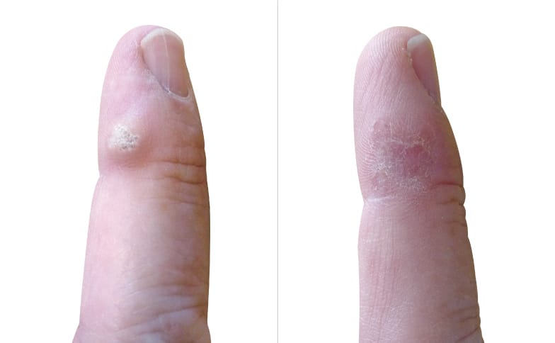 Warts on hands treatment best, Dehydrated skin