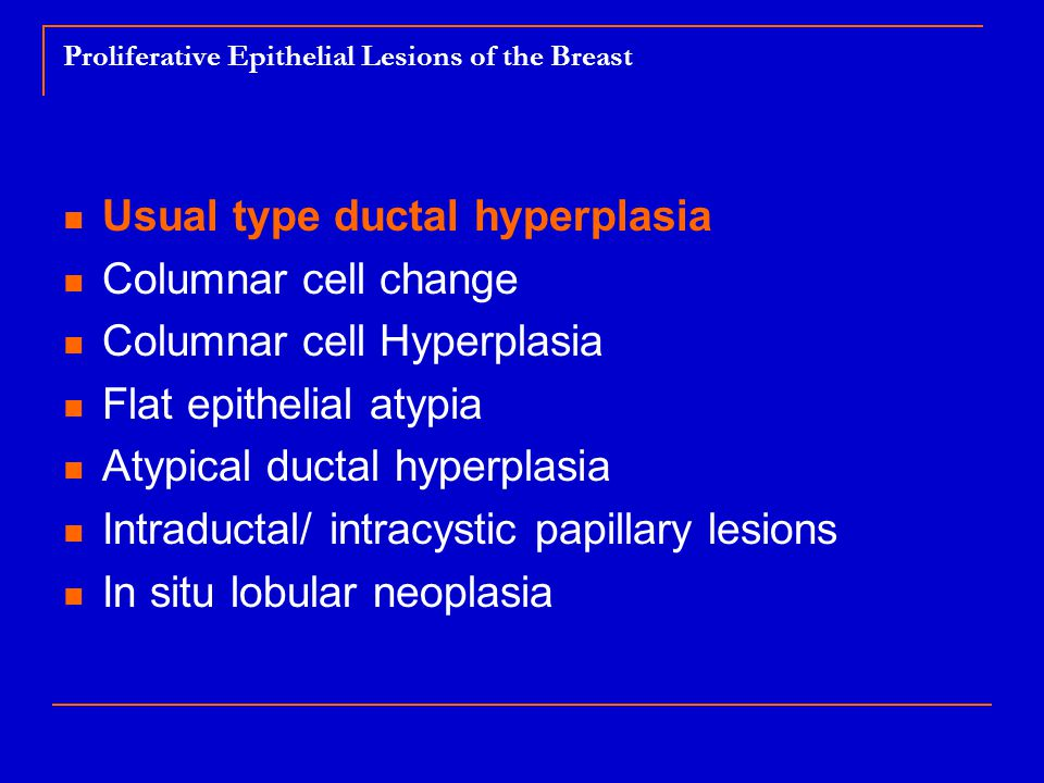 intraductal papilloma with focal usual ductal hyperplasia