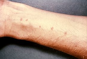 schistosomiasis signs and symptoms