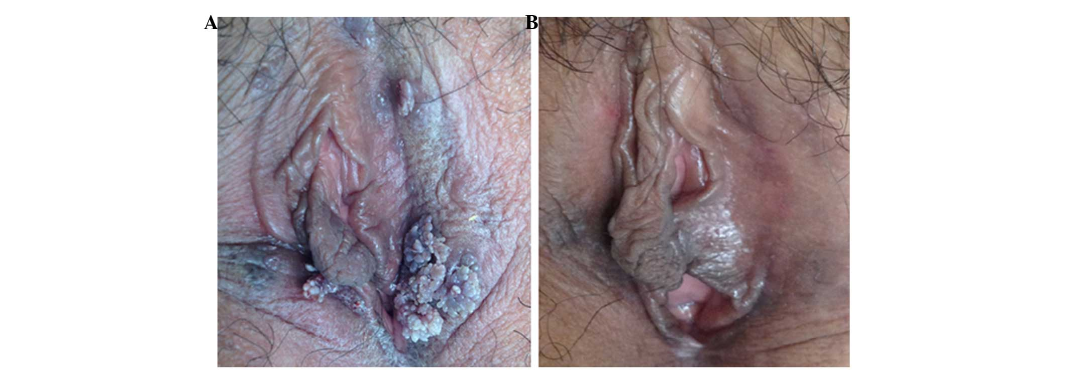 condyloma acuminata delivery hpv head and neck cancer risk