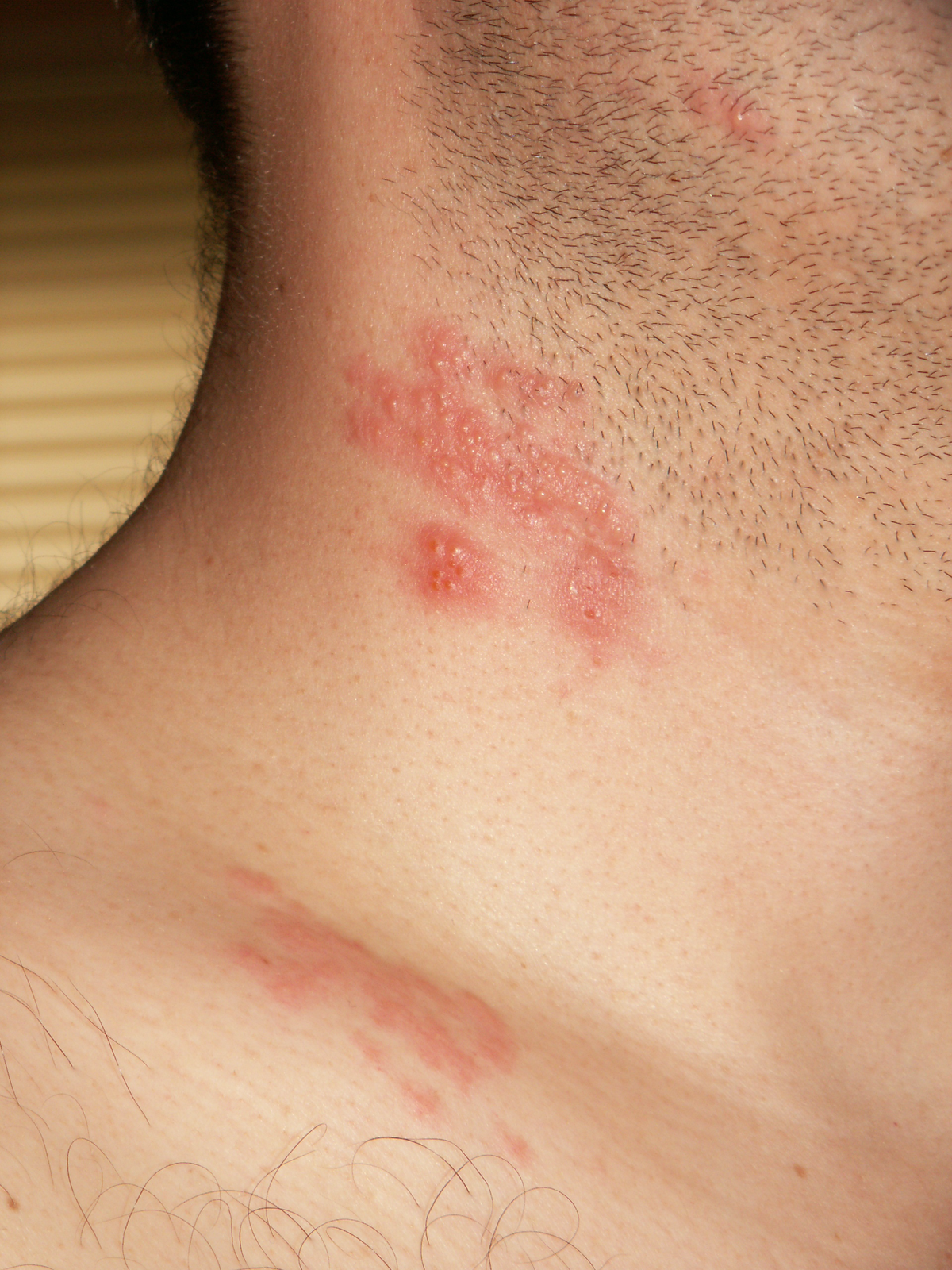 can hpv virus cause nerve pain