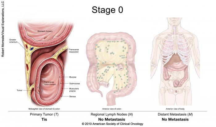 rectal cancer with mets)