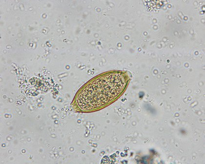 giardia nhs uk)