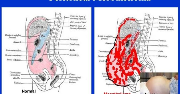 Peritoneal cancer after hysterectomy -