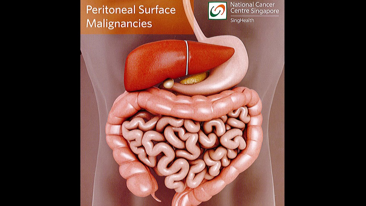 cancer of peritoneal lining