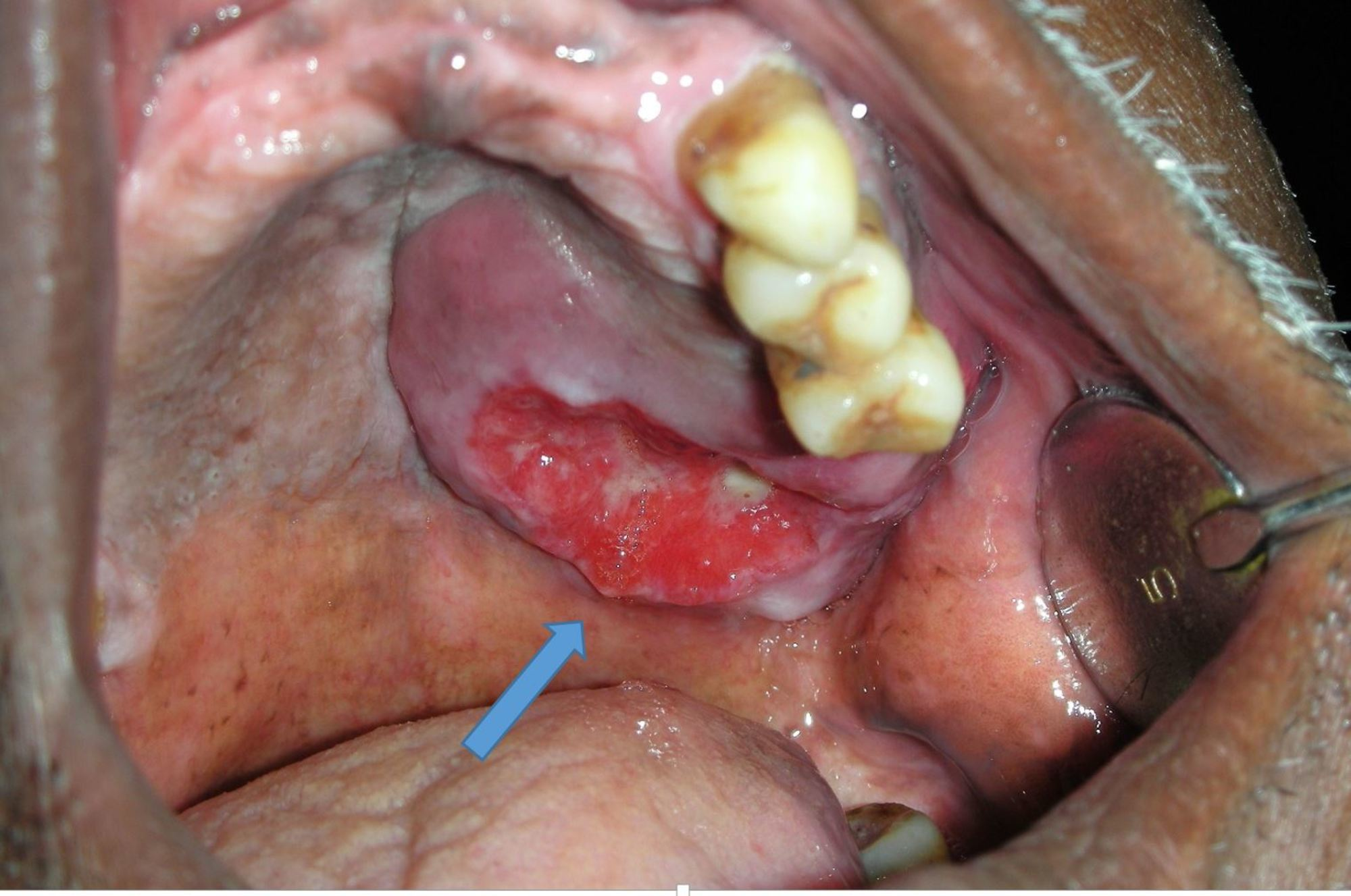 metastatic cancer from sinus
