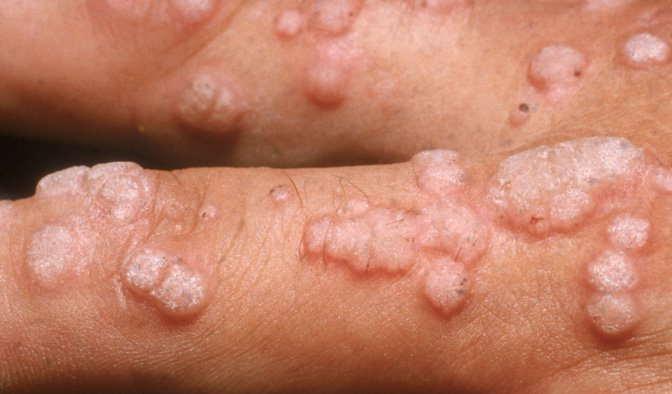 hpv wart and cancer)