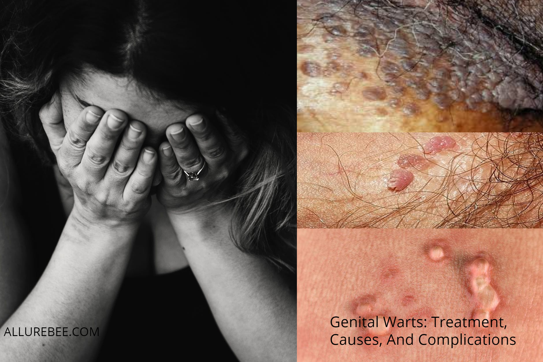 hpv warts topical treatment)