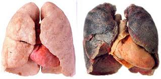 - Hpv cause lung cancer