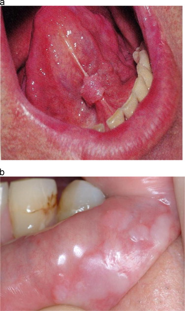 hpv in mouth signs)