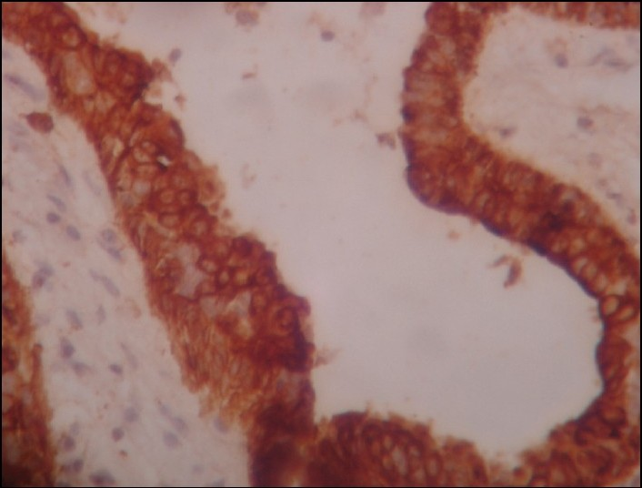 papiloma intraductal gpc)