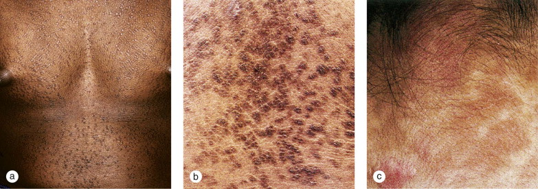 confluent and reticulated papillomatosis axilla)