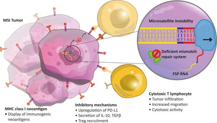 Metastatic cancer immunotherapy.