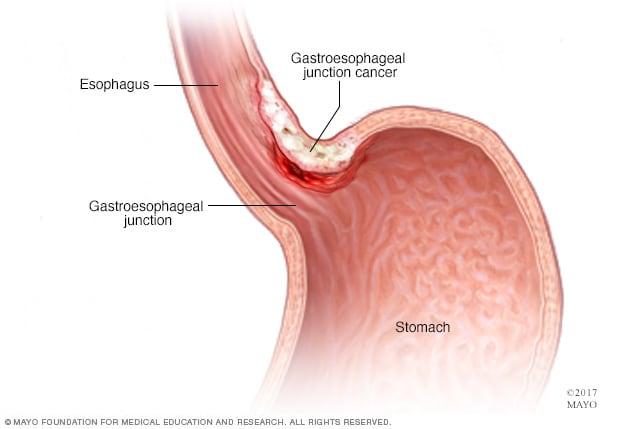 gastric cancer causes