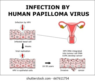 human papilloma cell changes