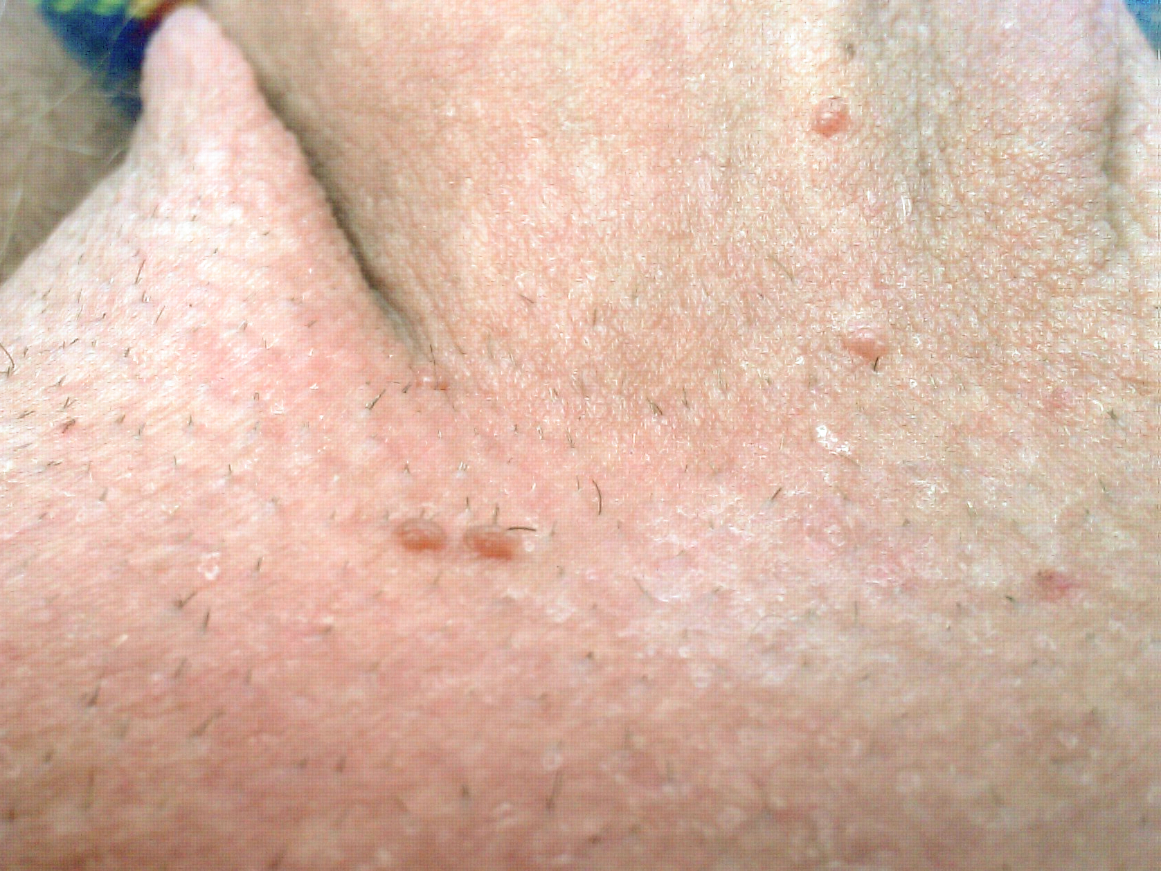 Hpv warts yeast infection. Human papillomavirus infection in mouth