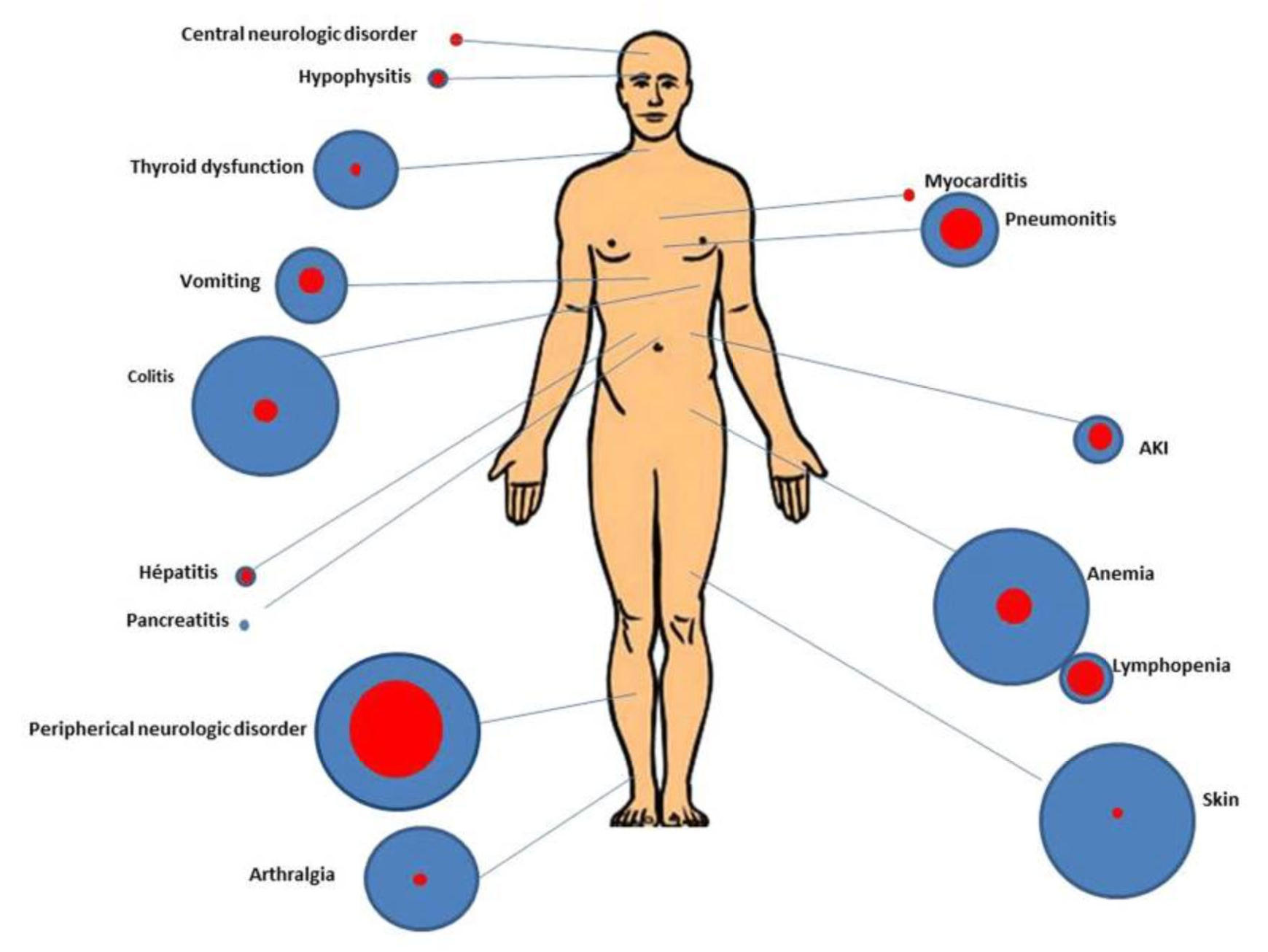 sarcoma cancer treatment side effects)