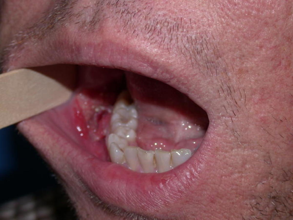 hpv virus and mouth cancer