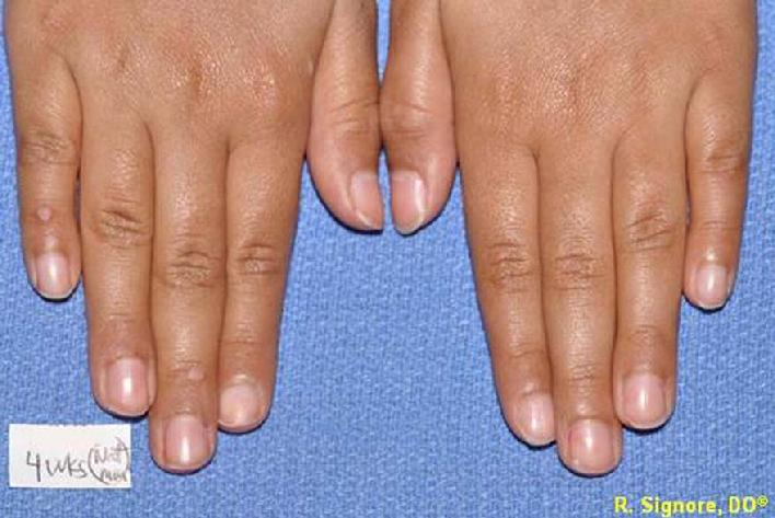 warts on hands stress)