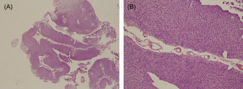 Papillary urothelial neoplasm of low malignant potential pathology,