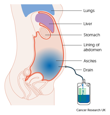 cancer of abdominal)