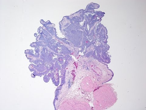 anthelmintic meaning in medical papilloma vescicale 3 cm