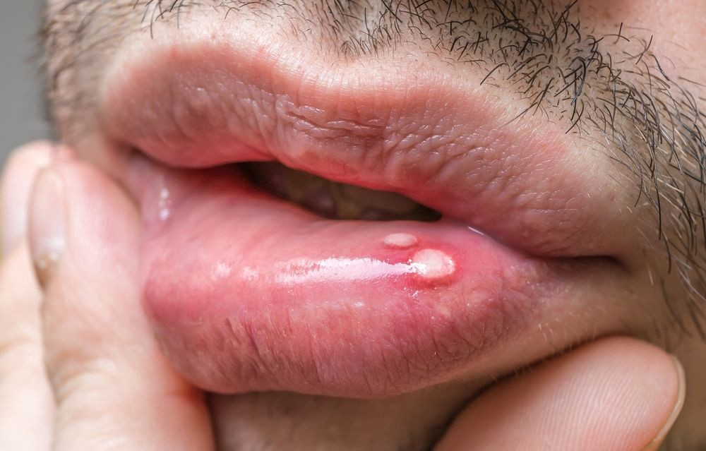 hpv wart in mouth