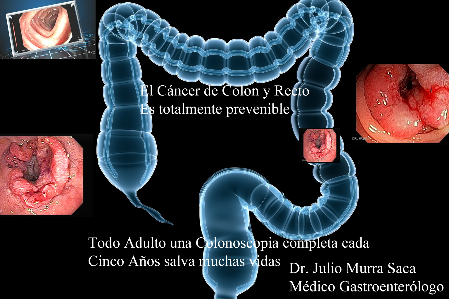 cancer ulcera de colon)