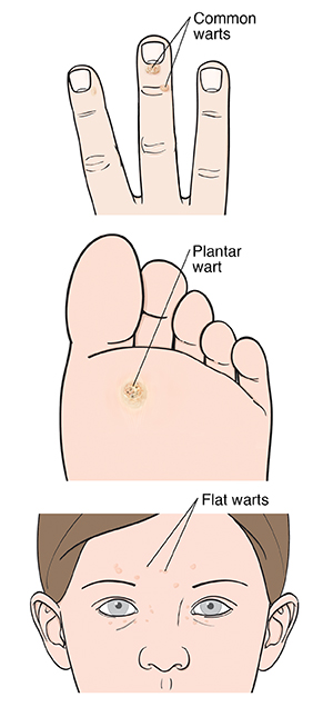 warts on hands spread to face)
